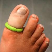 Podiatry Nail Surgery
