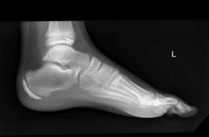 Foot structure xray | Sole Podiatry