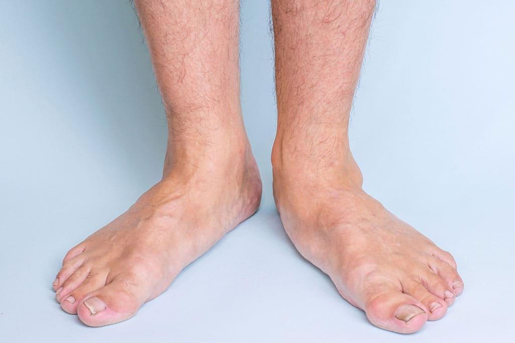 Feet Fleet Feet